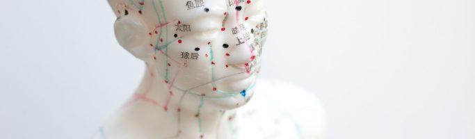 Akupunktiosta mahdollisesti lisäapua rasitusrintakipua poteville